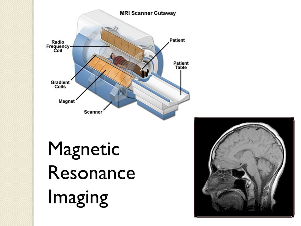 2.Microwaves: have the shortest wavelength and the highest frequency of all radio waves.