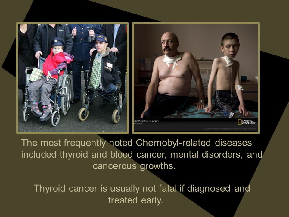 The most frequently noted Chernobyl-related diseases included thyroid and blood cancer, mental disorders, and cancerous growths. Thyroid cancer is usu