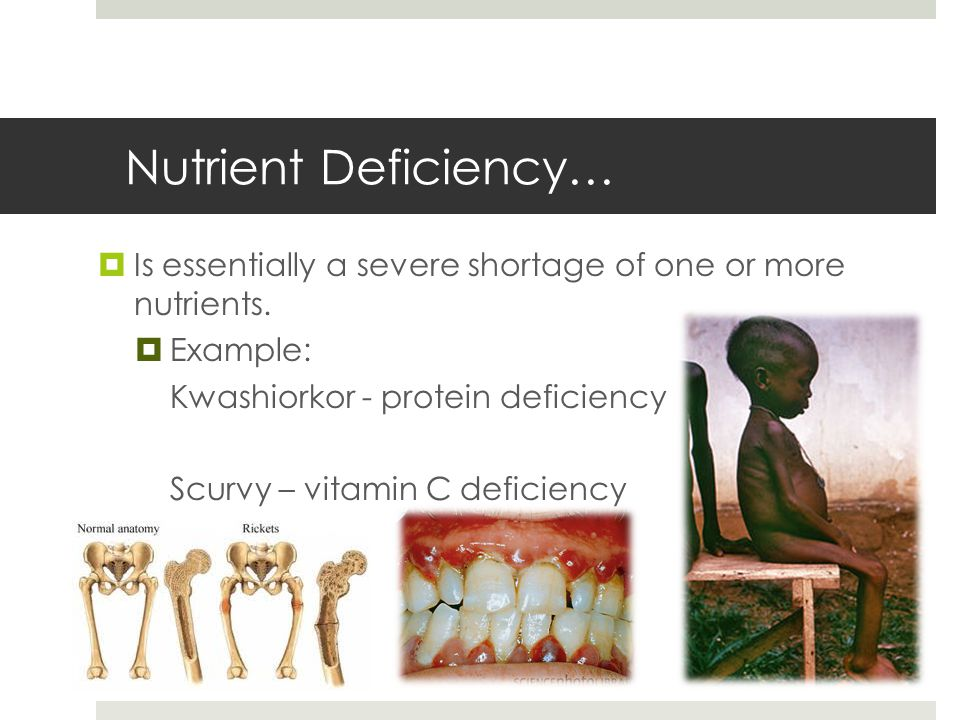 Nutrient Deficiency…  Is essentially a severe shortage of one or more nutrients.