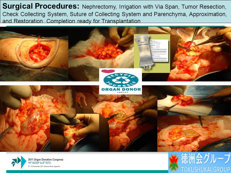 Surgical Procedures: Nephrectomy, Irrigation with Via Span, Tumor Resection, Check Collecting System, Suture of Collecting System and Parenchyma, Approximation, and Restoration Completion ready for Transplantation
