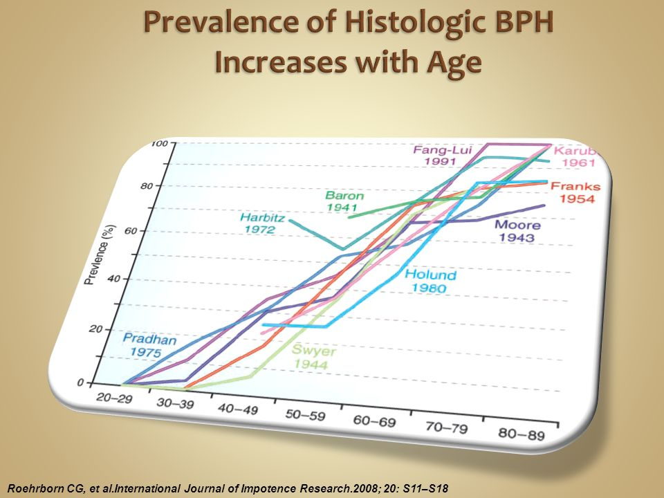 14 Total IPSSSymptom severity 0–7Mild 8–19Moderate  20 Severe EAU BPH guidelines.
