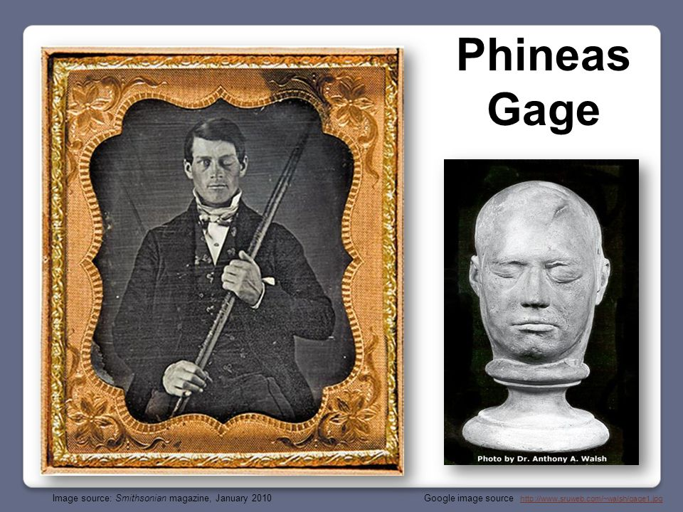 Google image source: http://www.brown.edu/Research/Memlab/py47/diagrams/phineas.jpghttp://www.brown.edu/Research/Memlab/py47/diagrams/phineas.jpg Phineas Gage: September 1848 Age 26 Died: 1861