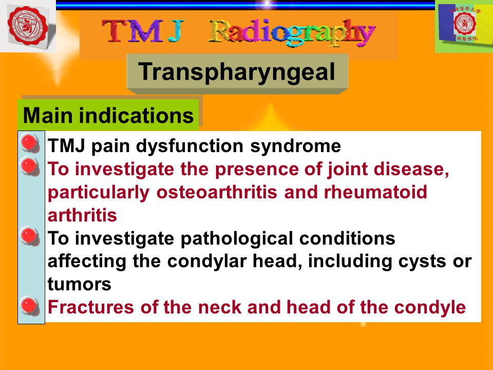 Main indications Transpharyngeal TMJ pain dysfunction syndrome To investigate the presence of joint disease, particularly osteoarthritis and rheumatoi