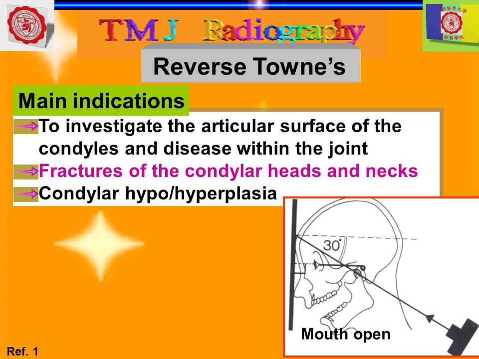 To investigate the articular surface of the condyles and disease within the joint Fractures of the condylar heads and necks Condylar hypo/hyperplasia
