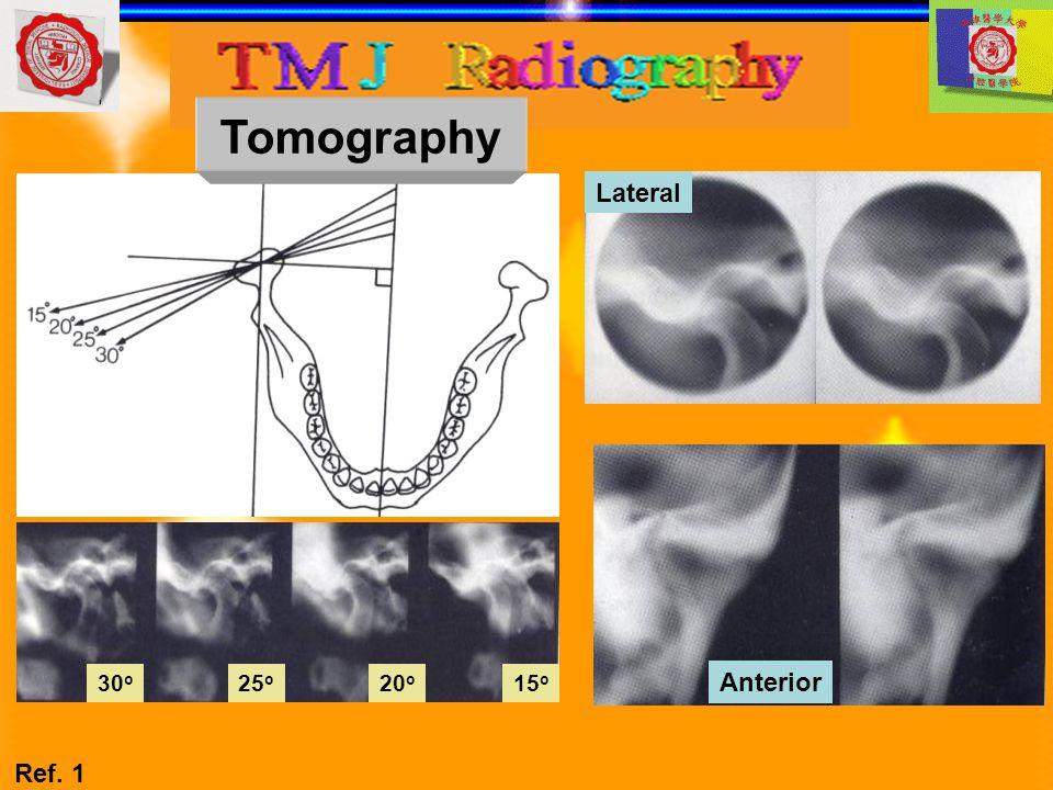 Lateral Anterior 15 o 20 o 25 o 30 o Tomography Ref. 1