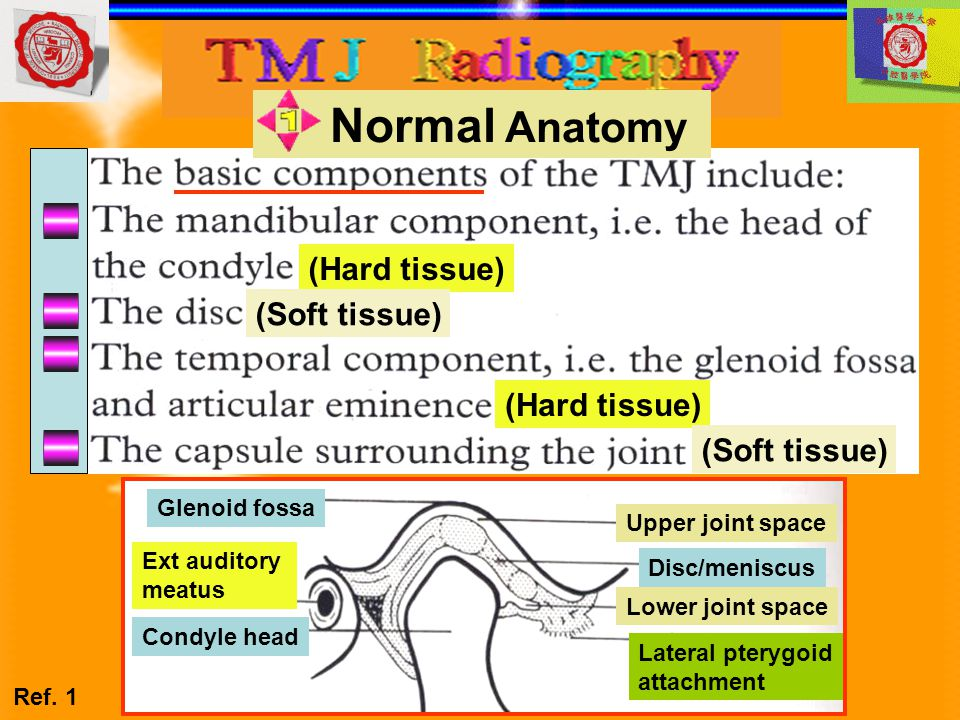 Main pathological conditions affecting the TMJ Main pathological conditions affecting the TMJ 最可能的診斷為: A.