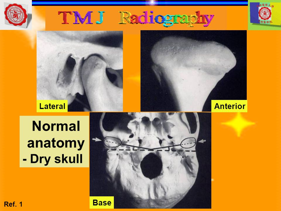 Dental panoramic tomograph Main indications TMJ pain dysfunction syndrome To investigate disease within the joint To investigate pathological conditions affecting the condylar heads Fractures of the condylar head or neck Condylar hypo/hyperplasia Diagnostic information The shape of the condylar head and condition of the articular surface from lateral aspect A direct comparison of both condylar heads