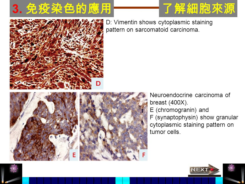 3.免疫染色的應用了解細胞來源 D: Vimentin shows cytoplasmic staining pattern on sarcomatoid carcinoma.