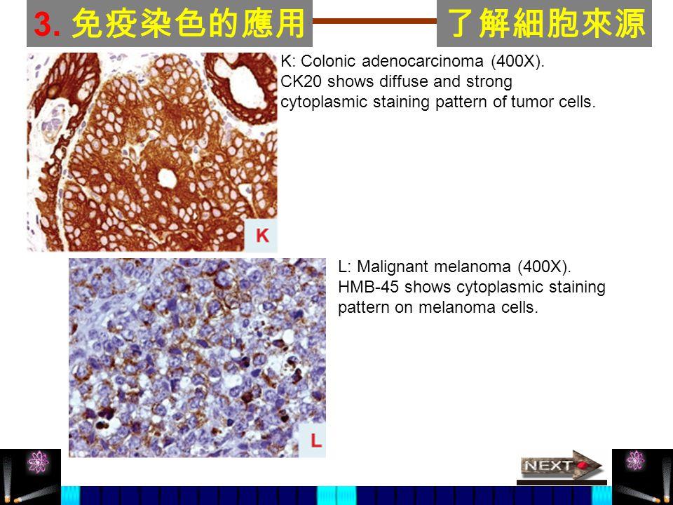 3. 免疫染色的應用了解細胞來源 K: Colonic adenocarcinoma (400X). CK20 shows diffuse and strong cytoplasmic staining pattern of tumor cells. L: Malignant melanoma (4