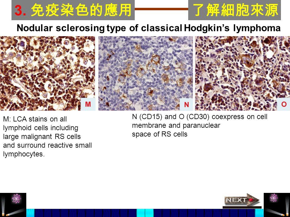 3. 免疫染色的應用了解細胞來源 N (CD15) and O (CD30) coexpress on cell membrane and paranuclear space of RS cells Nodular sclerosing type of classical Hodgkin's lym