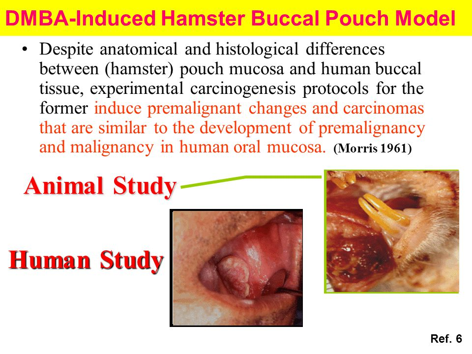 DMBA-Induced Hamster Buccal Pouch Model Despite anatomical and histological differences between (hamster) pouch mucosa and human buccal tissue, experi
