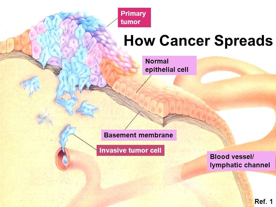 Primary tumor Normal epithelial cell Basement membrane Invasive tumor cell Blood vessel/ lymphatic channel How Cancer Spreads Ref. 1