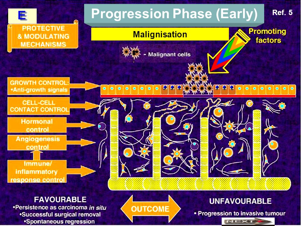 Progression Phase (Early) Malignisation Ref. 5