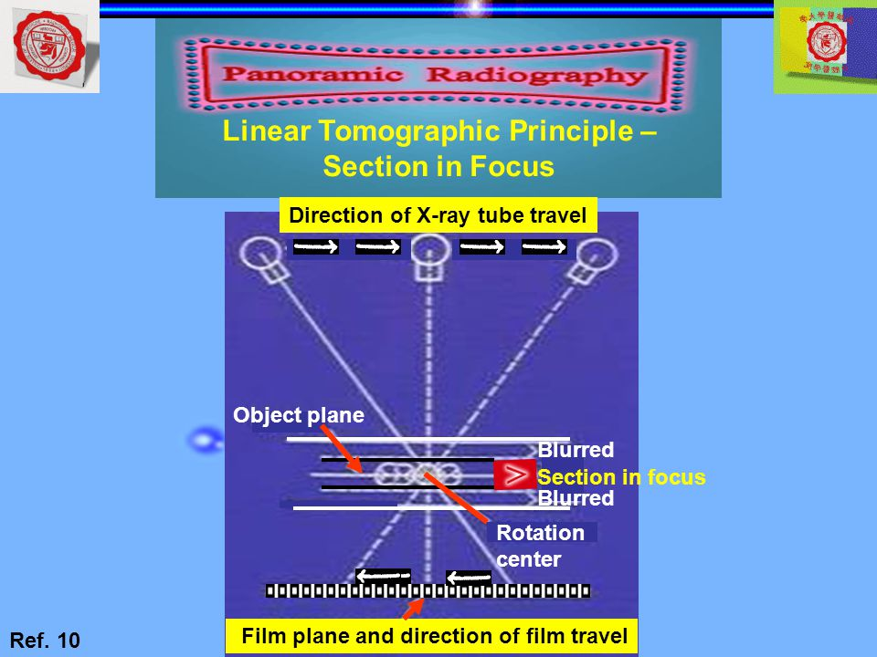 Film plane and direction of film travel Direction of X-ray tube travel Object plane Rotation center Blurred Section in focus Blurred Linear Tomographi