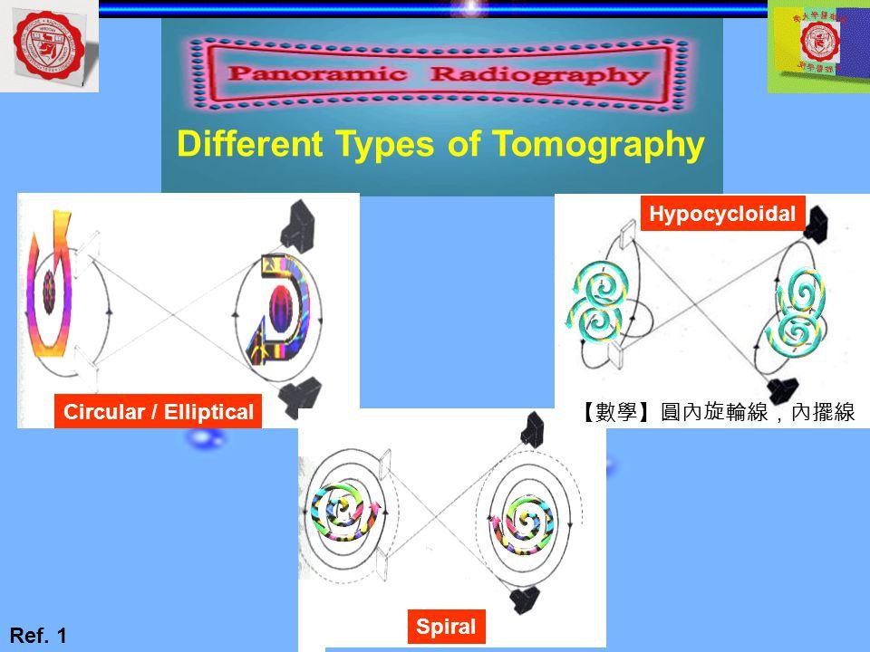 Hypocycloidal Circular / Elliptical Spiral Different Types of Tomography Ref. 1 【數學】圓內旋輪線,內擺線