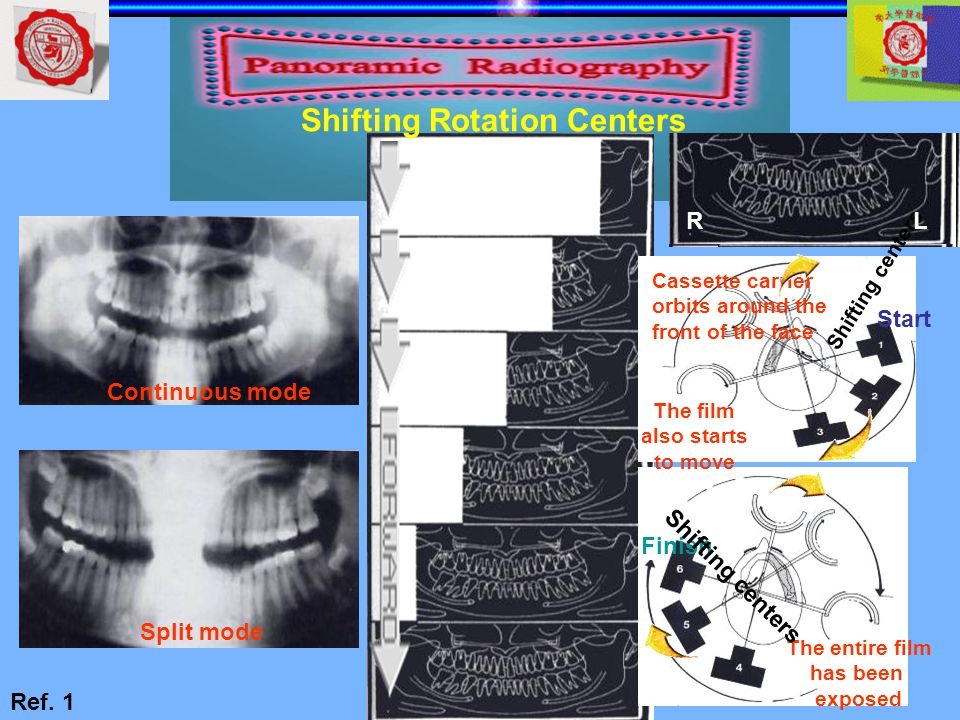 Continuous mode Split mode The entire film has been exposed Finish Shifting centers Cassette carrier orbits around the front of the face The film also