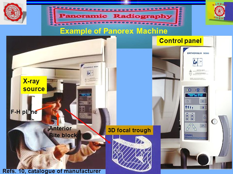Control panel X-ray source 3D focal trough F-H plane Anterior Bite block Refs. 10, catalogue of manufacturer Example of Panorex Machine