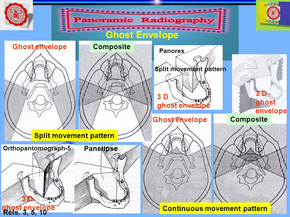 Continuous movement pattern Ghost envelope Composite Split movement pattern Ghost envelopeComposite Orthopantomograph-5 Panelipse 3 D ghost envelope P