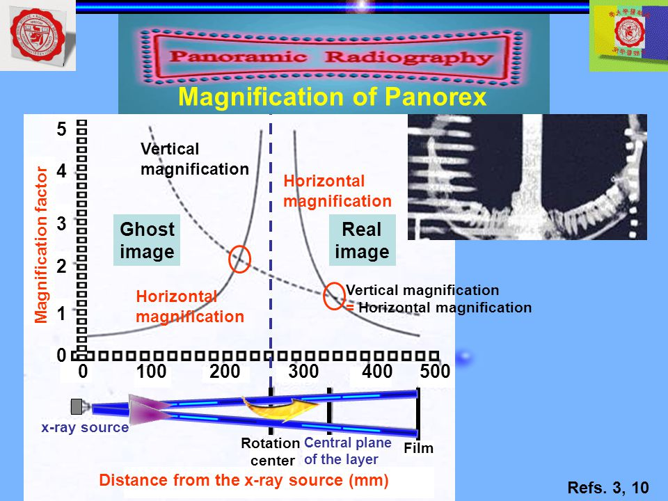 Distance from the x-ray source (mm) x-ray source Rotation center Central plane of the layer Film 0100200300400500 1 0 2 3 4 5 Ghost image Real image V