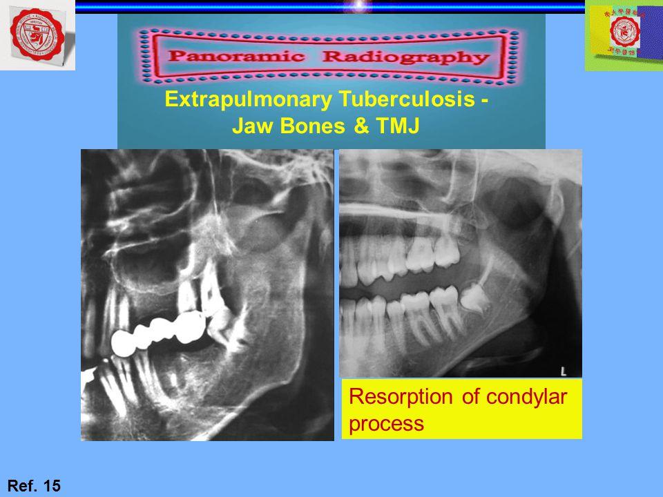 Extrapulmonary Tuberculosis - Jaw Bones & TMJ Ref. 15 Resorption of condylar process
