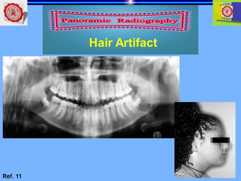 Hair Artifact Ref. 11