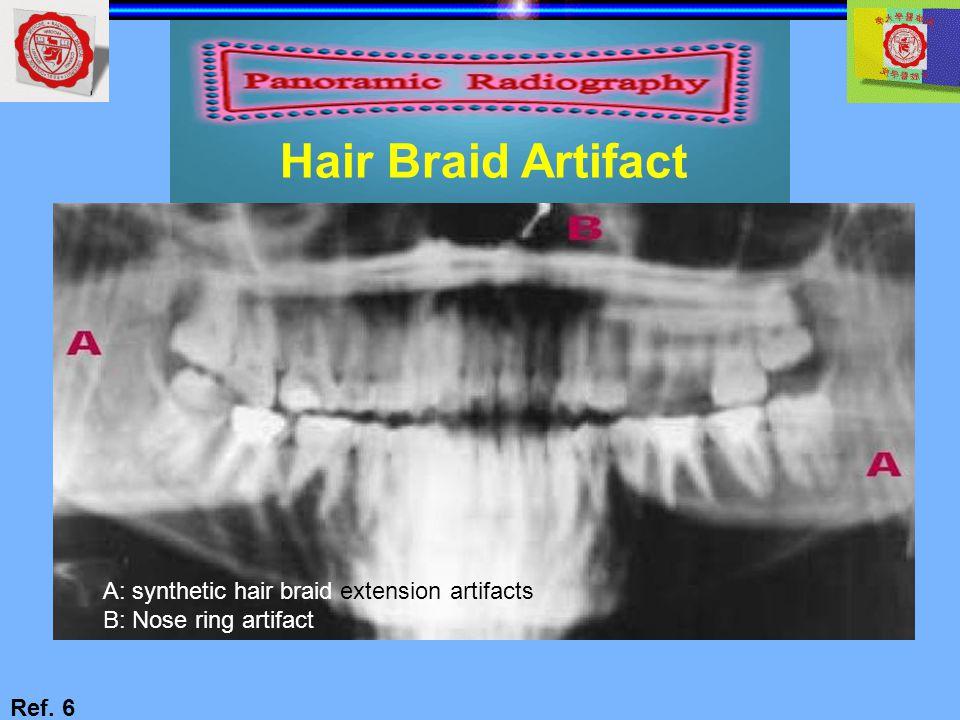 Hair Braid Artifact Ref. 6 A: synthetic hair braid extension artifacts B: Nose ring artifact