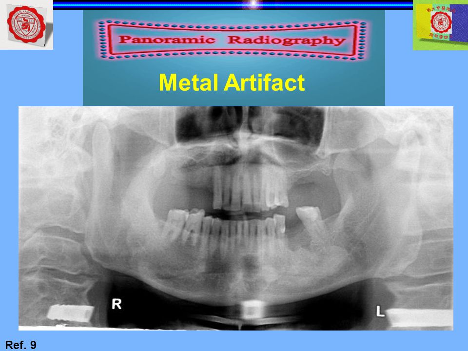 Metal Artifact Ref. 9