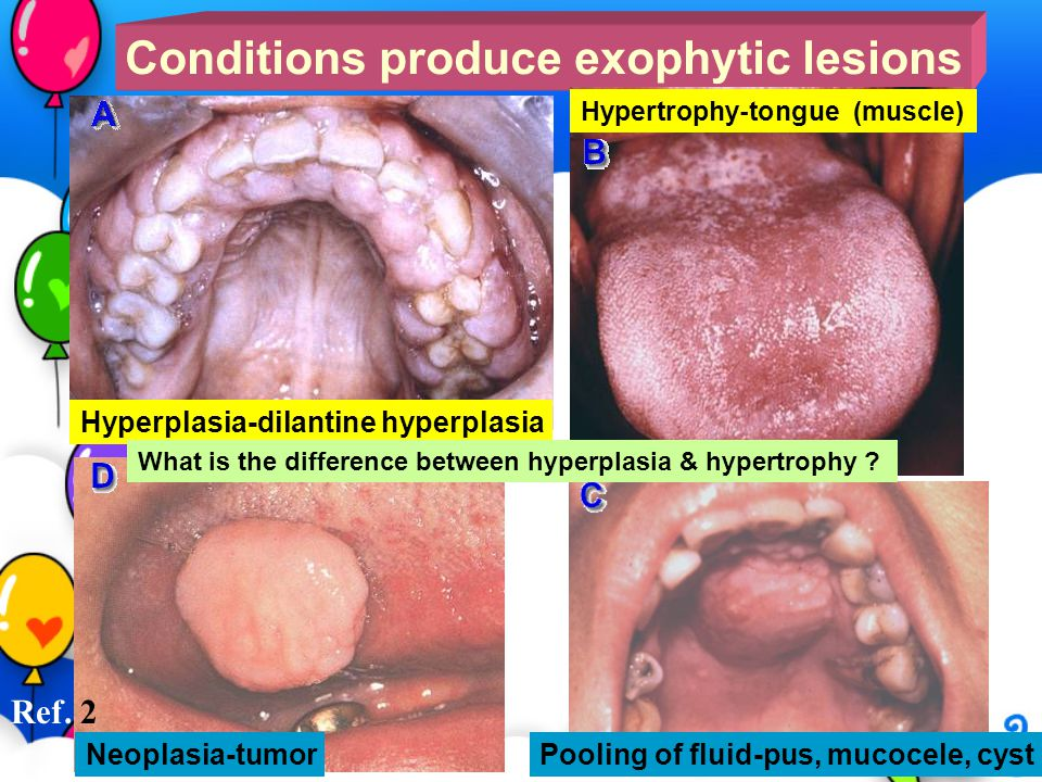 Conditions produce exophytic lesions Hyperplasia-dilantine hyperplasia Hypertrophy-tongue (muscle) Pooling of fluid-pus, mucocele, cyst Neoplasia-tumo