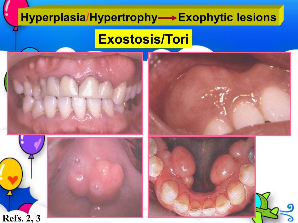 Hyperplasia/Hypertrophy Exophytic lesions Exostosis/Tori Refs. 2, 3