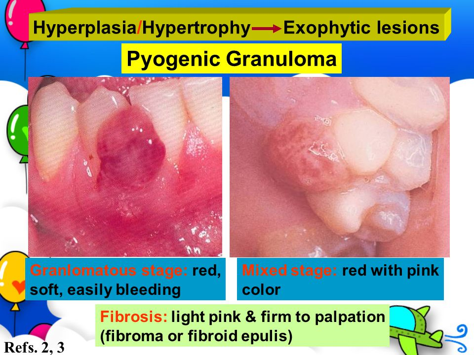 Hyperplasia/Hypertrophy Exophytic lesions Pyogenic Granuloma Granlomatous stage: red, soft, easily bleeding Mixed stage: red with pink color Fibrosis: