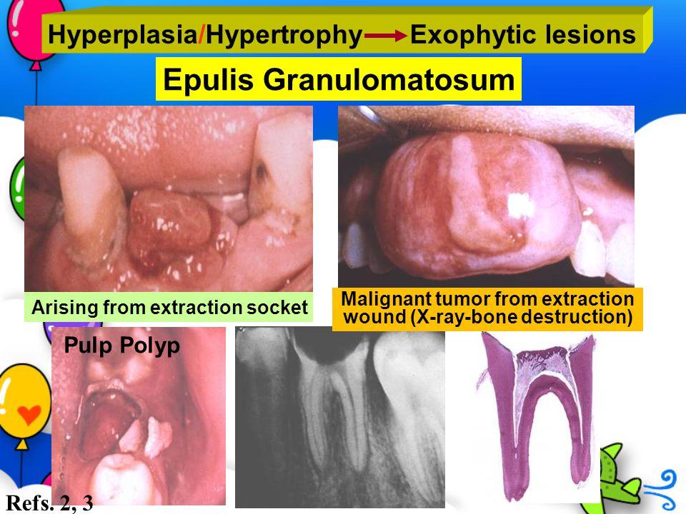 Epulis Granulomatosum Hyperplasia/Hypertrophy Exophytic lesions Malignant tumor from extraction wound (X-ray-bone destruction) Arising from extraction