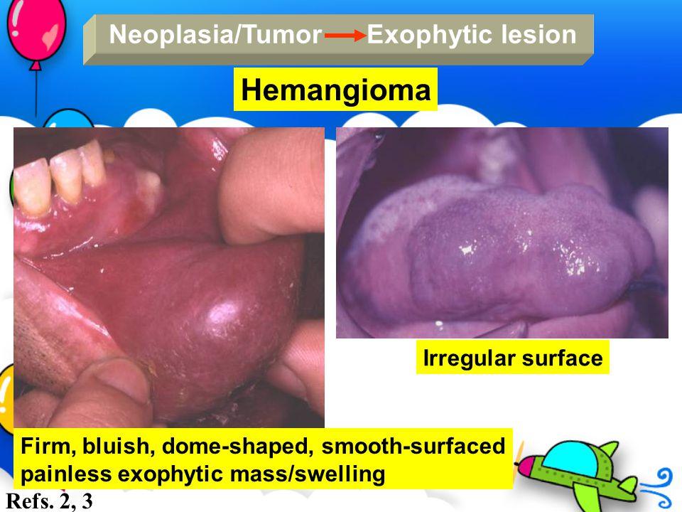 Neoplasia/Tumor Exophytic lesion Hemangioma Firm, bluish, dome-shaped, smooth-surfaced painless exophytic mass/swelling Irregular surface Refs. 2, 3