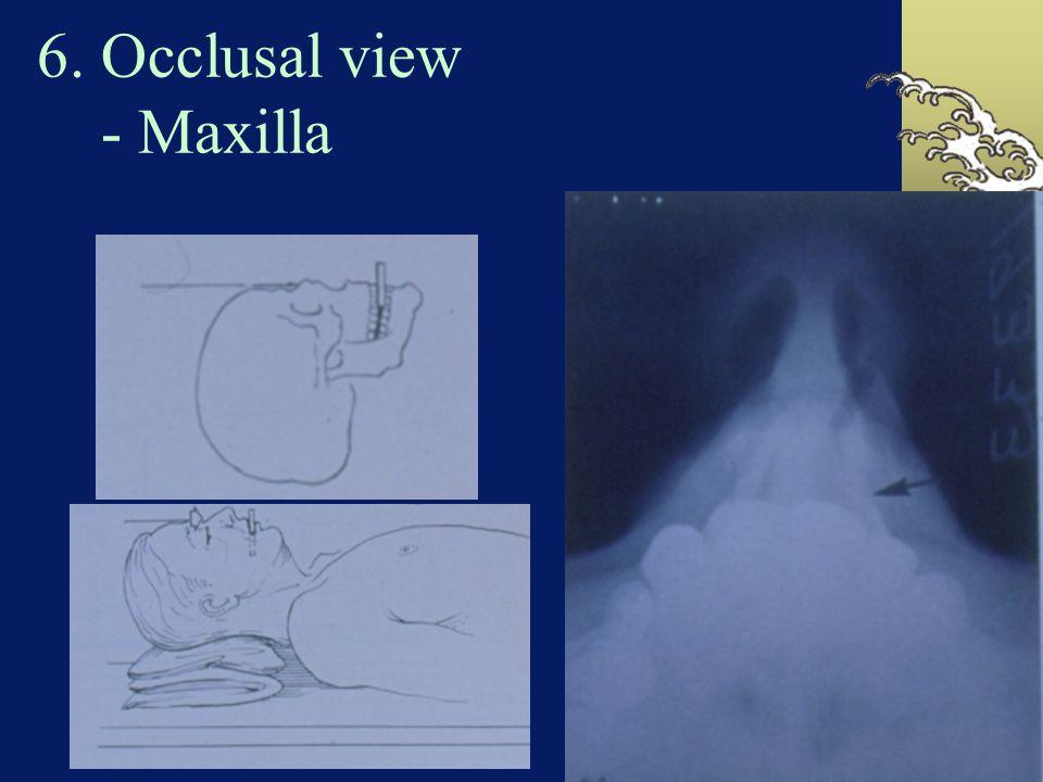 6. Occlusal view - Maxilla