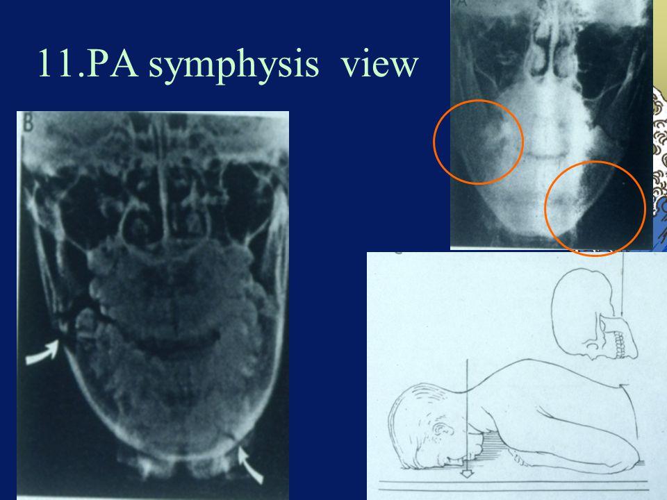 11.PA symphysis view