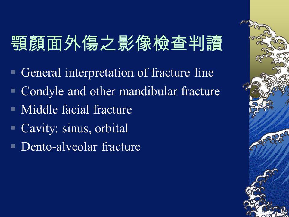 顎顏面外傷之影像檢查判讀  General interpretation of fracture line  Condyle and other mandibular fracture  Middle facial fracture  Cavity: sinus, orbital  Den
