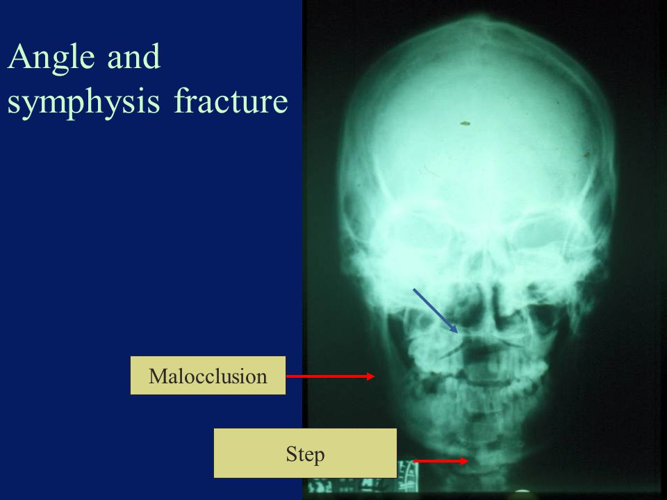 Angle and symphysis fracture Malocclusion Step