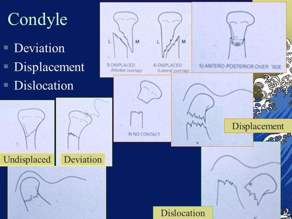 Condyle  Deviation  Displacement  Dislocation Dislocation DeviationUndisplaced Displacement
