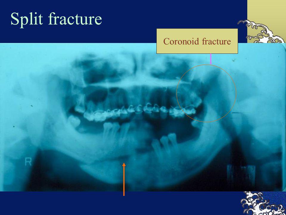 Split fracture Coronoid fracture