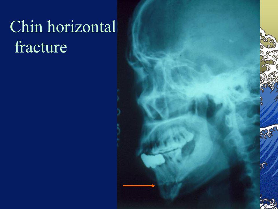 Chin horizontal fracture