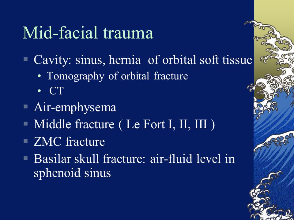 Mid-facial trauma  Cavity: sinus, hernia of orbital soft tissue Tomography of orbital fracture CT  Air-emphysema  Middle fracture ( Le Fort I, II,