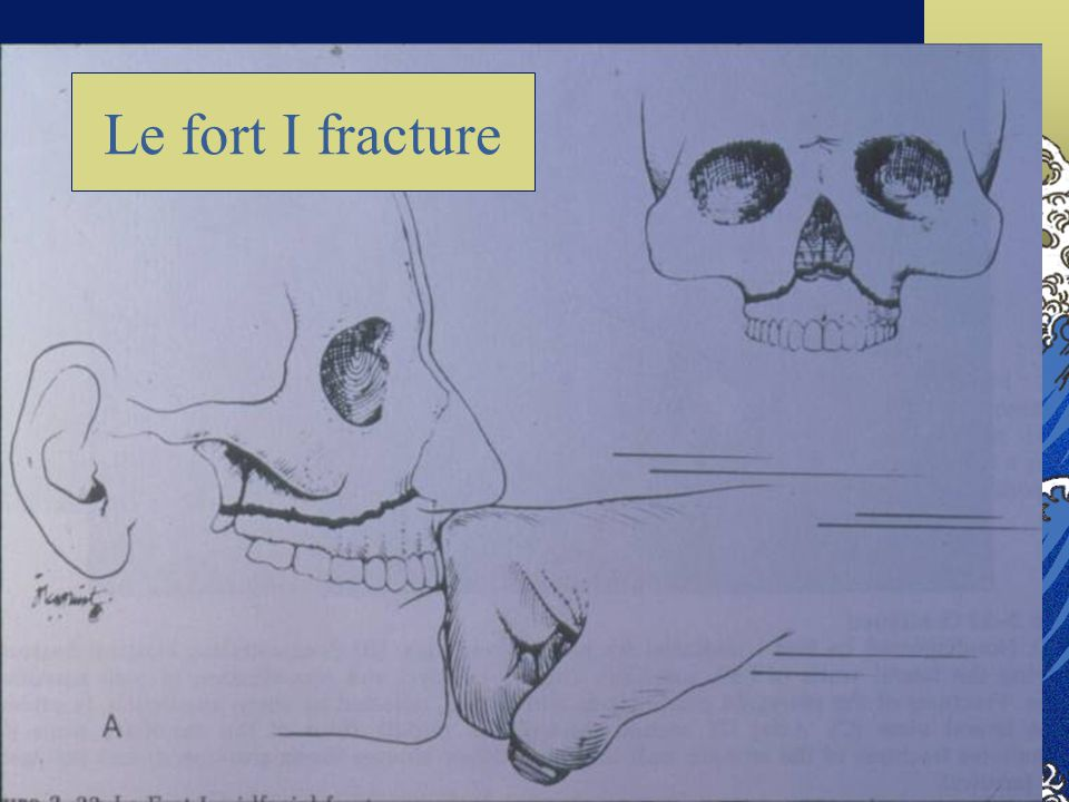 Le fort I fracture