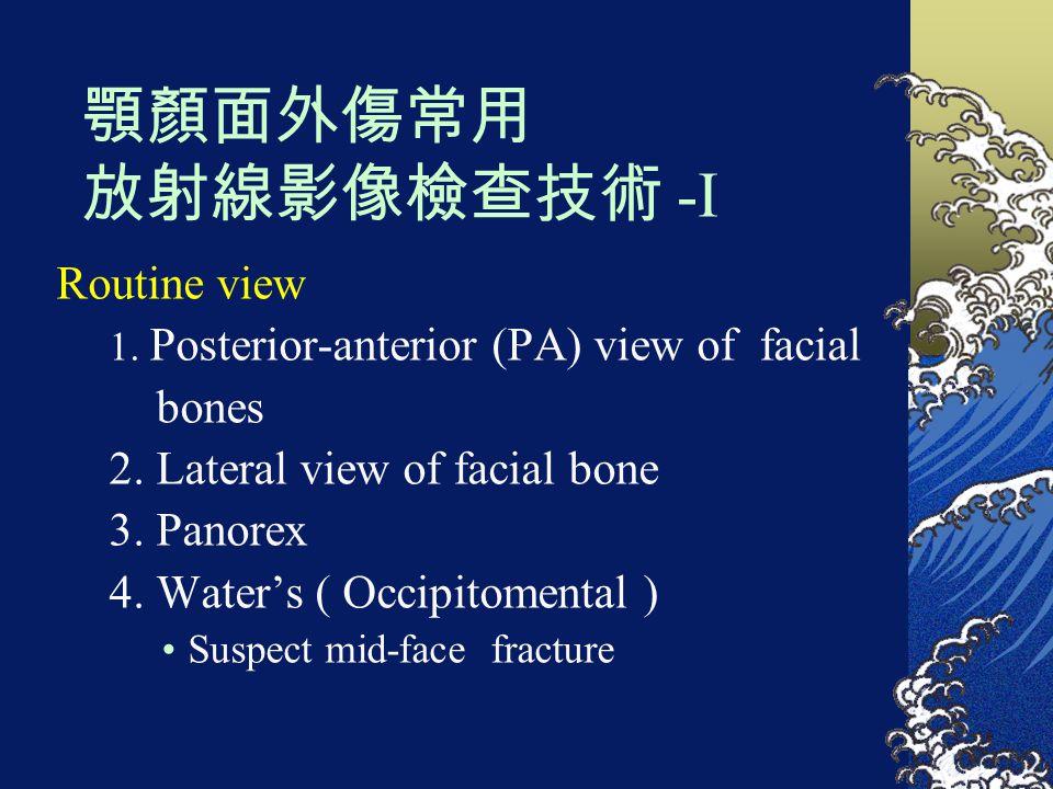 顎顏面外傷常用 放射線影像檢查技術 -I Routine view 1. Posterior-anterior (PA) view of facial bones 2. Lateral view of facial bone 3. Panorex 4. Water's ( Occipitomenta