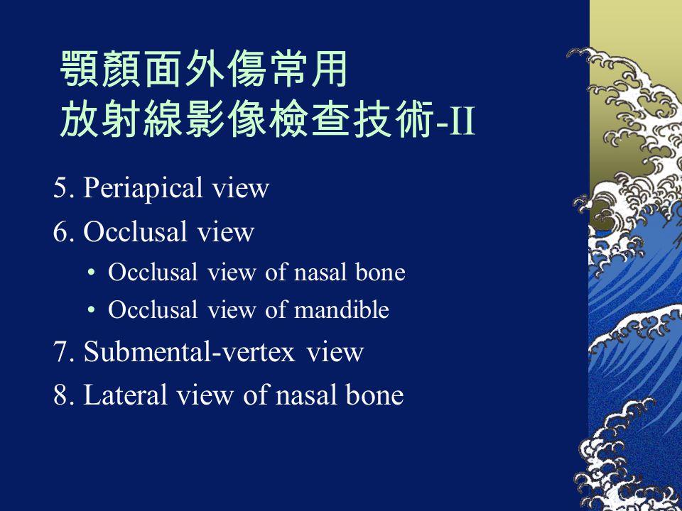 顎顏面外傷常用 放射線影像檢查技術 -II 5. Periapical view 6. Occlusal view Occlusal view of nasal bone Occlusal view of mandible 7. Submental-vertex view 8. Lateral vi