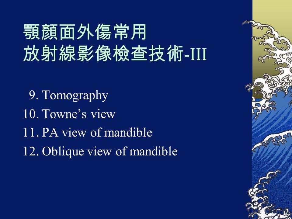 顎顏面外傷常用 放射線影像檢查技術 -III 9. Tomography 10. Towne's view 11. PA view of mandible 12. Oblique view of mandible