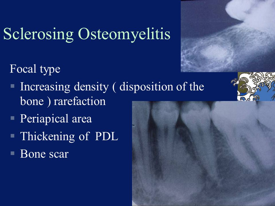 Sclerosing Osteomyelitis Focal type  Increasing density ( disposition of the bone ) rarefaction  Periapical area  Thickening of PDL  Bone scar