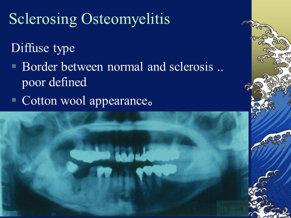 Sclerosing Osteomyelitis Diffuse type  Border between normal and sclerosis.. poor defined  Cotton wool appearance 。