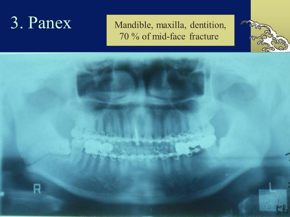感染的影像檢查技術  Plain film radiography  CT scan  MRI  Nuclear bone scans  Tomography  Ultrasonography