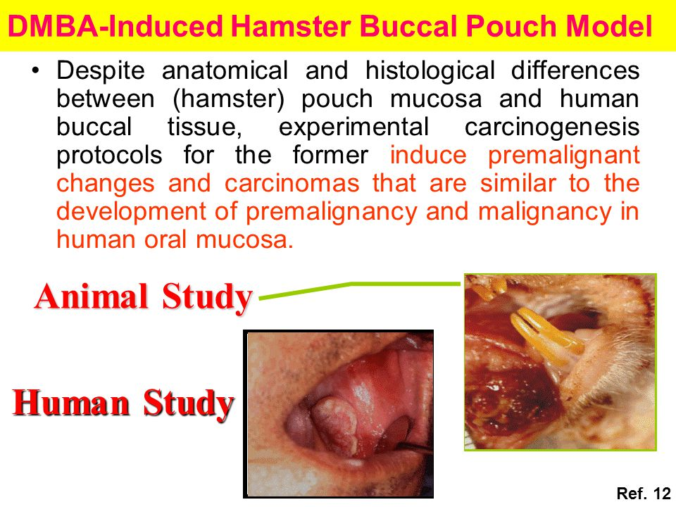 DMBA-Induced Hamster Buccal Pouch Model Despite anatomical and histological differences between (hamster) pouch mucosa and human buccal tissue, experimental carcinogenesis protocols for the former induce premalignant changes and carcinomas that are similar to the development of premalignancy and malignancy in human oral mucosa.