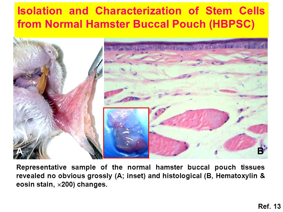 AB Isolation and Characterization of Stem Cells from Normal Hamster Buccal Pouch (HBPSC) Representative sample of the normal hamster buccal pouch tissues revealed no obvious grossly (A; inset) and histological (B, Hematoxylin & eosin stain,  200) changes.