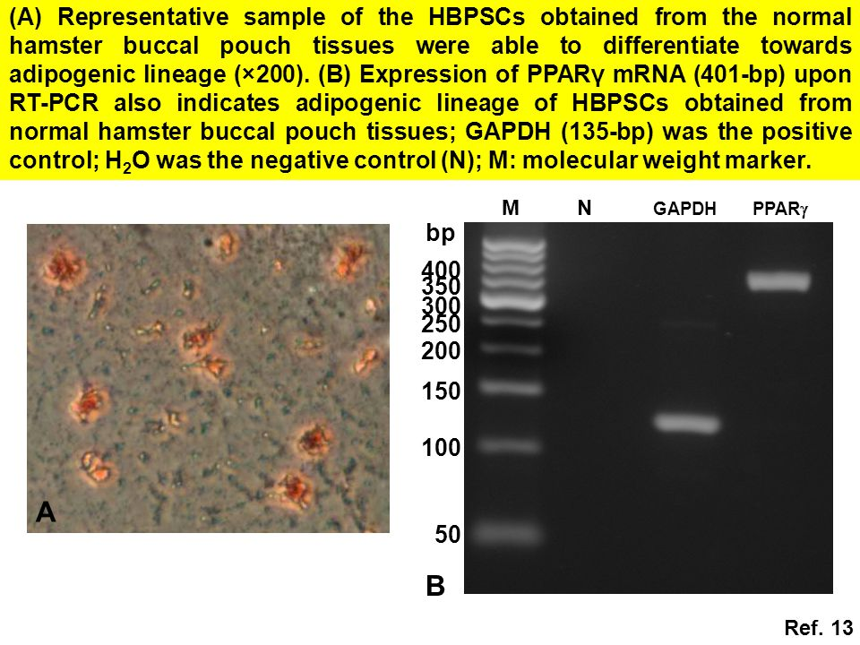 A NM GAPDH PPAR  B 50 100 150 200 250 300 350 400 bp (A) Representative sample of the HBPSCs obtained from the normal hamster buccal pouch tissues were able to differentiate towards adipogenic lineage (×200).